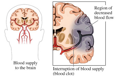 mark fitzgerald trauma use of blood